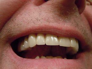 שיניים מושלמות